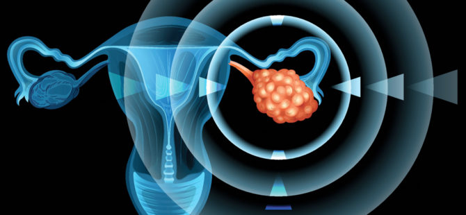 Воздействие электрических импульсов на ткани яичника