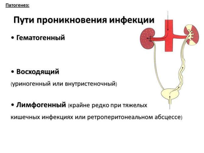 Пути проникновения инфекции в почку, схема