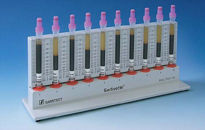 Аппарат для измерения скорости оседания эритроцитов