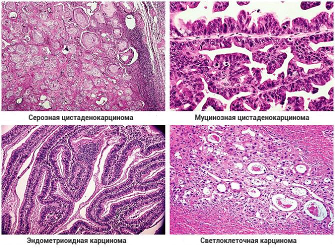 Эпителиальные карциномы яичников