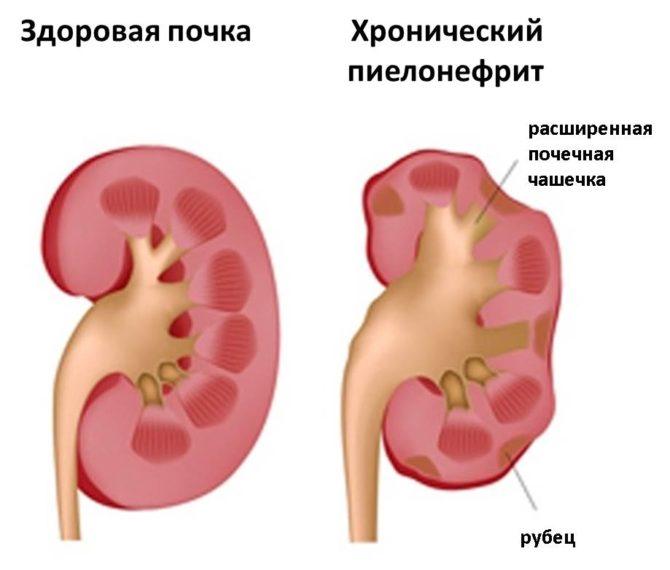 Почки: здоровая и поражённая хроническим пиелонефритом