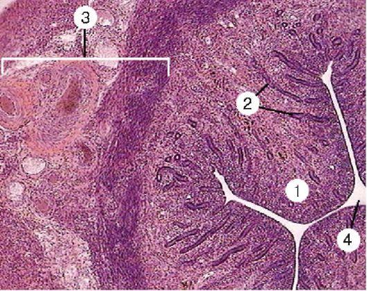 Картина миомы матки под микроскопом