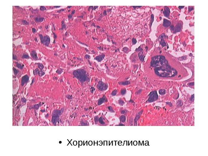 Микроскопическая картина хорионэпителиомы