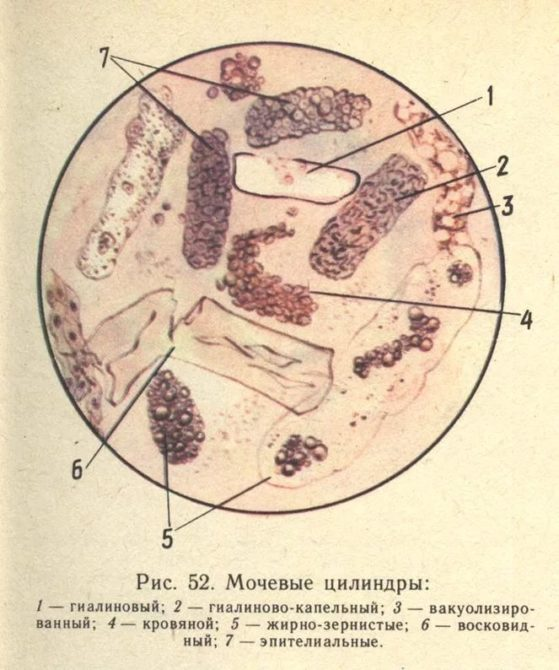 Мочевые цилиндры
