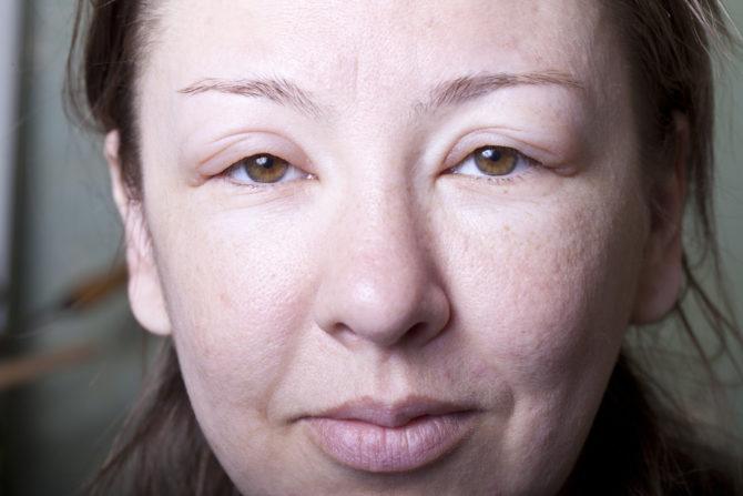 Женское лицо с отёком