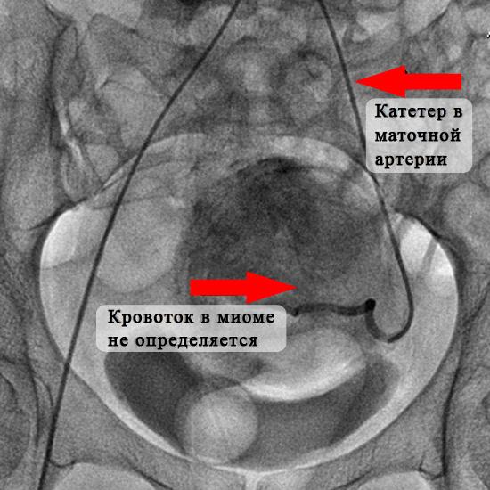 Рентгеновская картина при эмболизации маточной артерии
