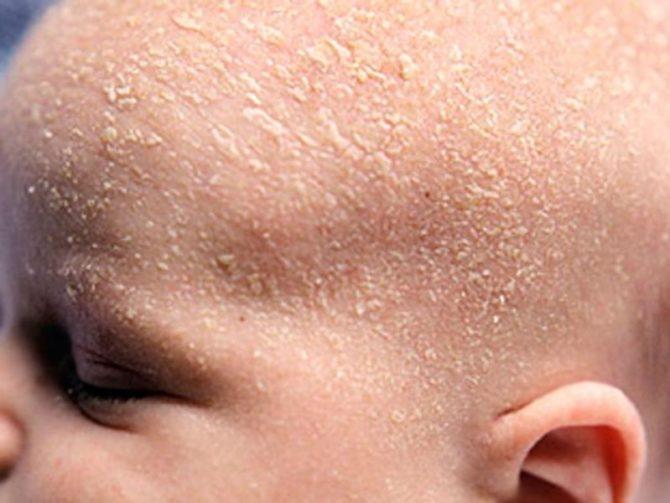 Шелушение кожи у ребёнка