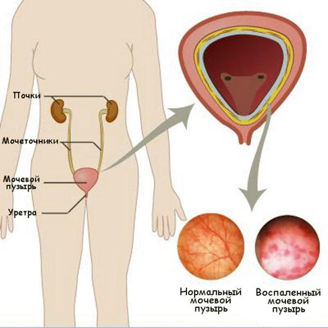 Схема расположения мочевыводящих органов и изображение тканей мочевого пузыря в норме и при цистите