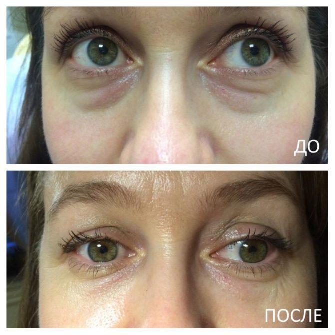 Глаза до и после приёма лекарств