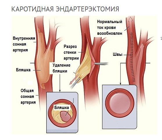 Каротидная эндартерэктомия (техника проведения)