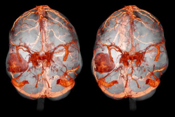 Ангиография сосудов головного мозга (снимок)
