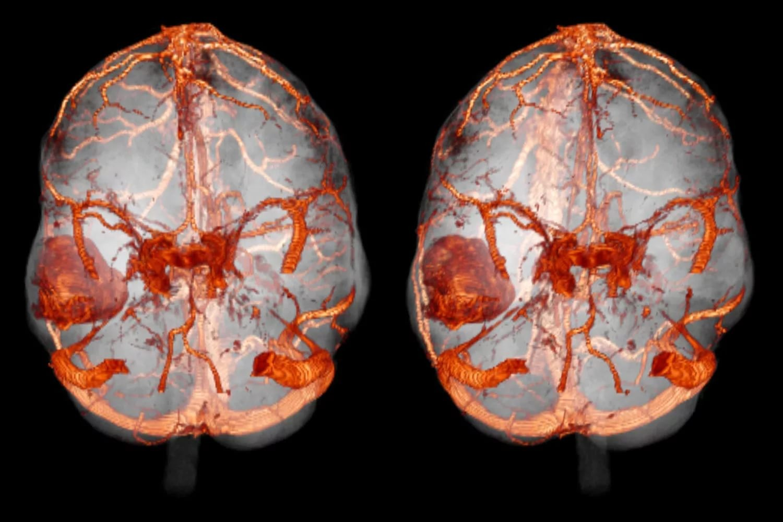 Фото головного мозга с сосудами