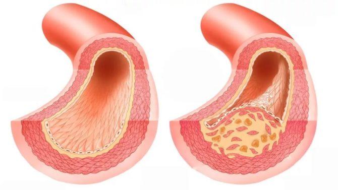 Сосуды: здоровый и поражённый атеросклерозом