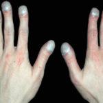 Деформация ногтей и пальцев при недостаточности кровообращения