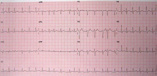 ЭКГ-картина мерцательной аритмии