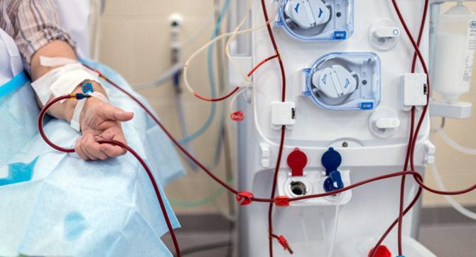 Подача крови в аппарат «искусственная почка» при гемодиализе