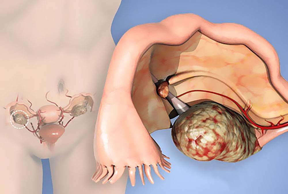 Опухоли яичников у женщин: особенности видов (гормонопродуцирующие, андробластома и другие) и их последствия, в том числе перекр