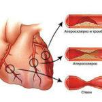 Холестериновые бляшки в сосудах сердца
