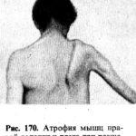 Исход энцефалита