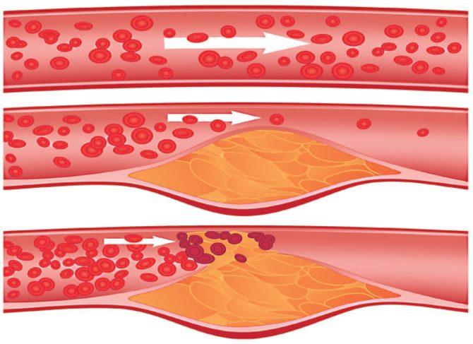 Кровоток: по здоровой артерии и поражённой атеросклерозом
