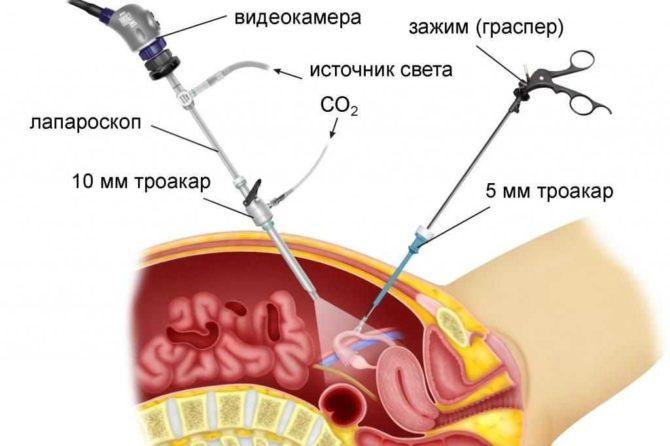 Лапароскопия опухоли яичника