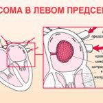 Миксома в левом предсердии (схема)