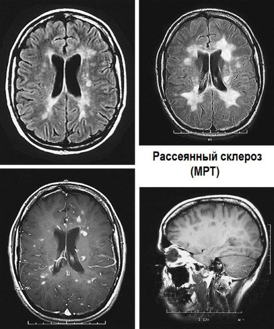 МР-картина головного мозга при рассеянном склерозе