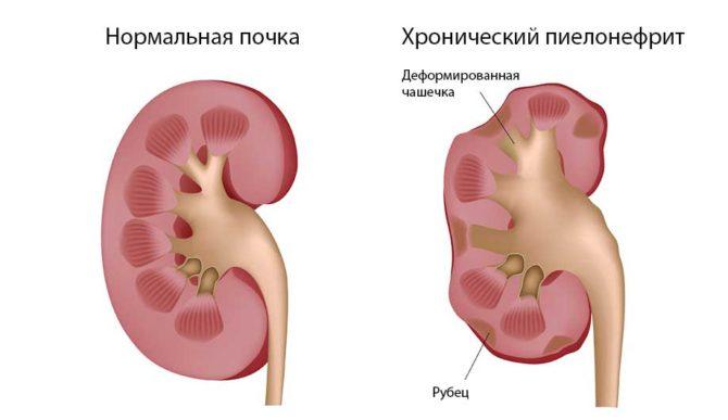 Здоровая почка и почка при хроническом пиелонефрите