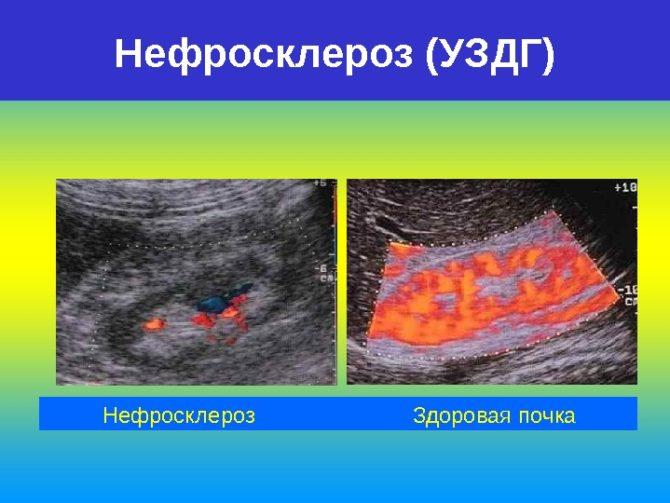 Почка с нефросклерозом и здоровая почка на снимке УЗИ