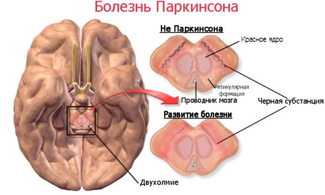 Развитие болезни Паркинсона