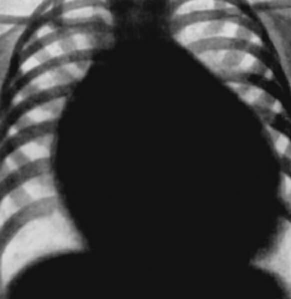 Рентгеновская картина порока сердца