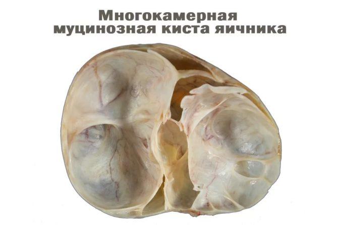 Муцинозная цистаденома