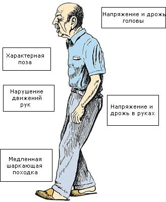 Начальные симптомы болезни Паркинсона