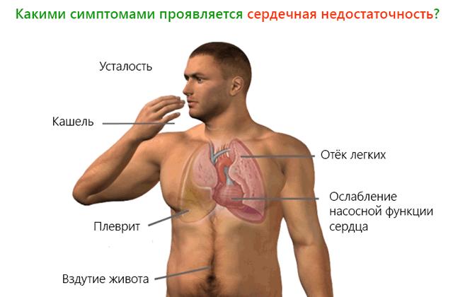 Симптомы ХСН (схема)