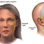 Симптомы поражение лицевого и тройничного нерва