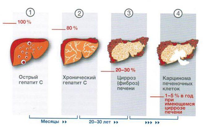 Стадии гепатита С