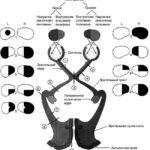 Типы выпадения полей зрения при повреждении зрительного нерва