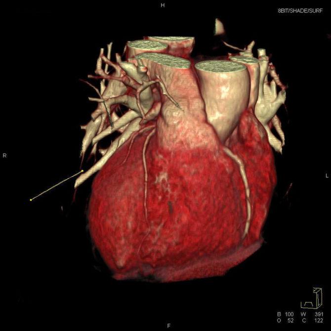 Томографическое изображение сердца (трёхмерная реконструкция)