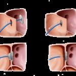 Закрытие дефекта перегородки окклюдером (схема)