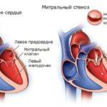 Здоровый и стенозированный митральный клапан