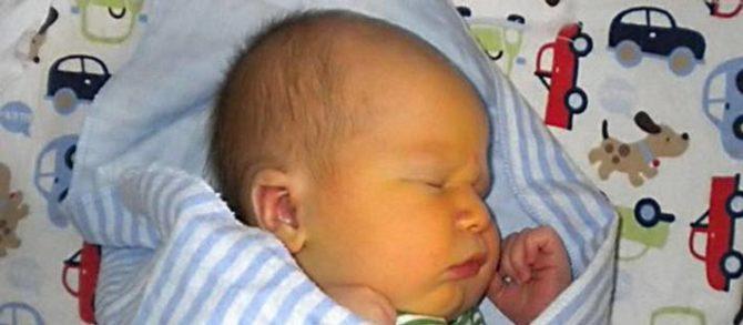 Желтуха у новорождённого