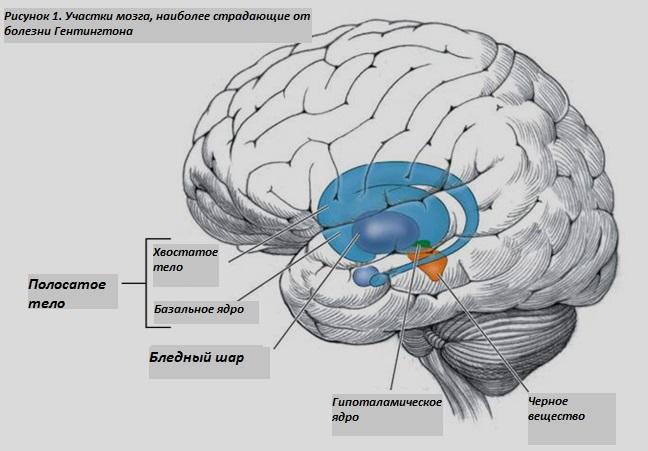 Участки мозга, наиболее страдающие при болезни Гентингтона