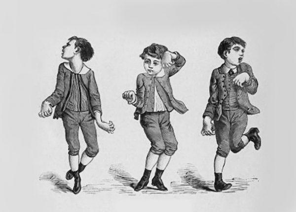 Хорея Гентингтона у мальчика — движения, напоминающие танец