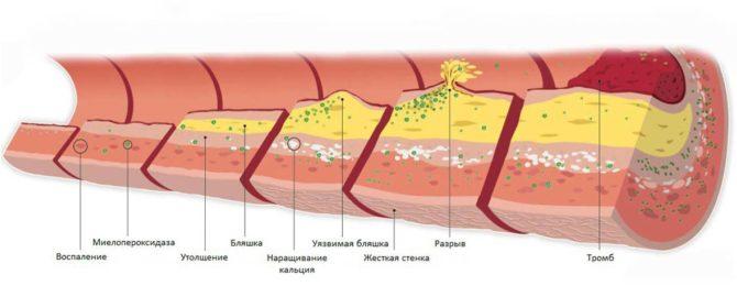 Атеросклеротическая бляшка (схема различных стадий)