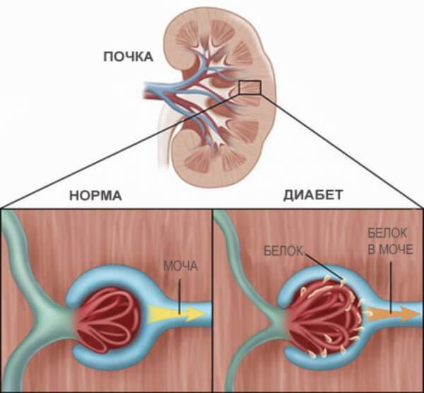 Схема почечной фильтрации в норме и при диабете