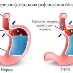 Гастроэзофагеальная рефлюксная болезнь (схема)