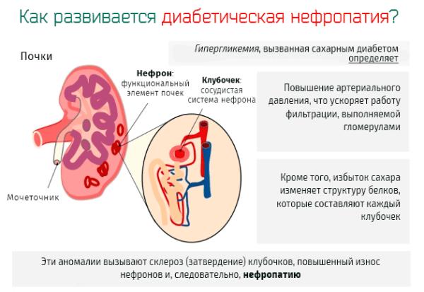 Механизм развития диабетической нефропатии