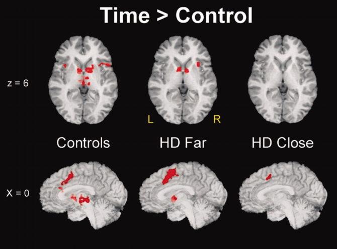 МРТ биомаркеров ранней дисфункции нейронов при болезни Гентингтона
