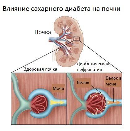 Схема появления белка в моче при диабетической нефропатии