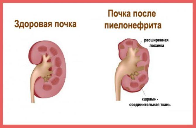 Почки: здоровая и после пиелонефрита